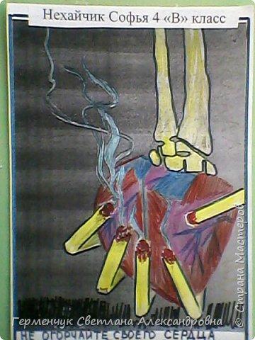 """На уроке по ЗОЖ   проходили тему"""" Курить -здоровью вредить!.""""Ребята  принесли  на урок  плакаты,которые нарисовали вместе с родителями  о вреде курения.Некоторые взяли раскраски из Интернета.Получились  работы очень убедительными .Дети ,у которых родители курят ,говорили, что расскажут  дома о страшных последствиях   со здоровьем у людей    от курения. https://www.google.by/searchhttps://www.google.by/search?q=раскраски+о+вреде+курения фото 19"""
